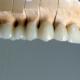 Одиночные коронки, полукоронки, вениры из безметалловой керамики